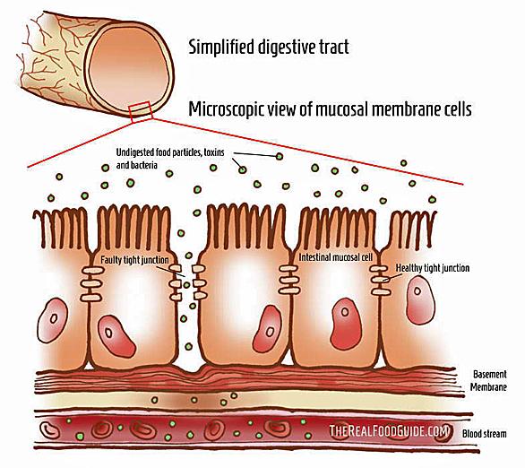 Leaky Gut Diagram